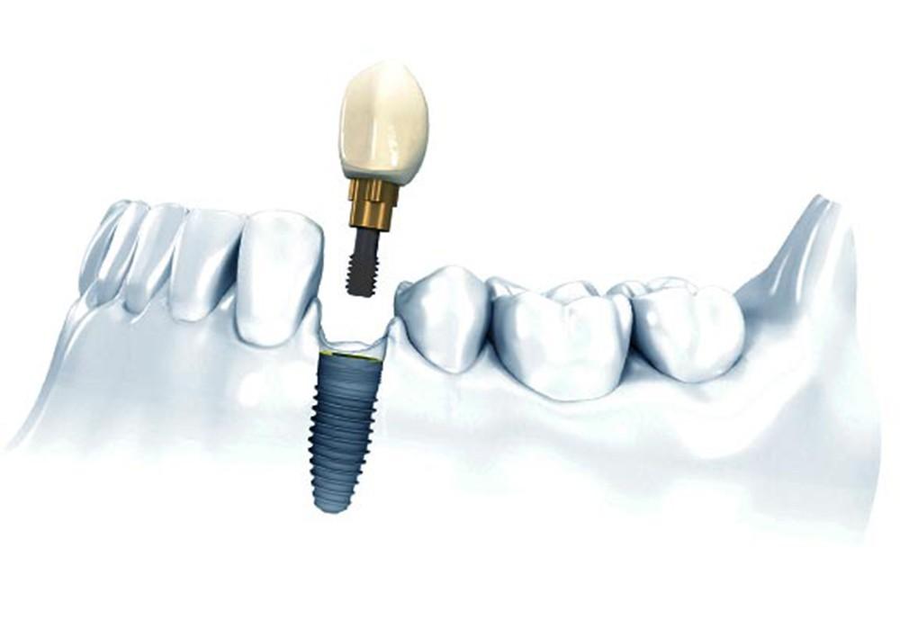 Одиночная имплантация зубов в Калининграде