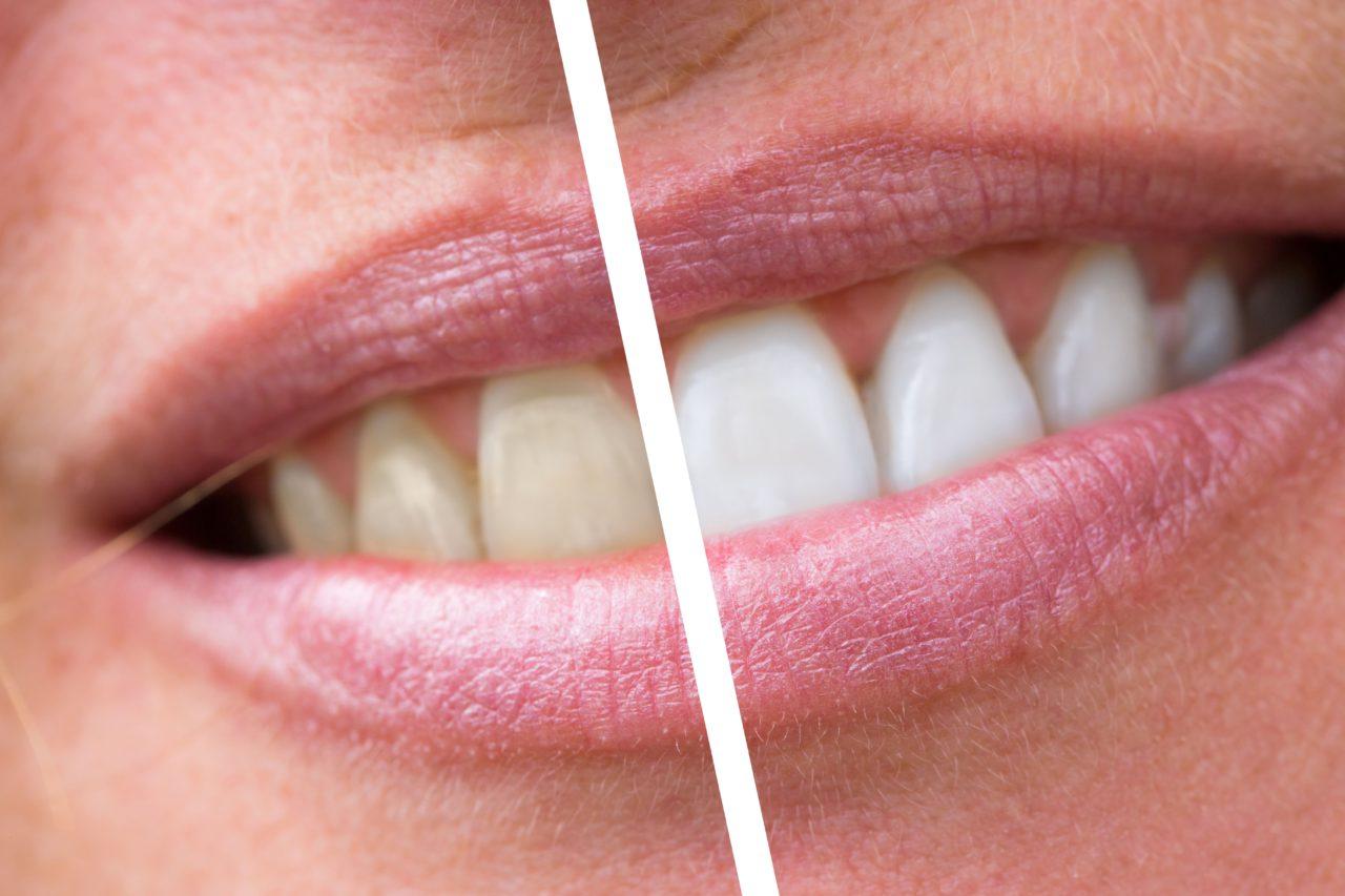 Что нужно знать про отбеливание зубов