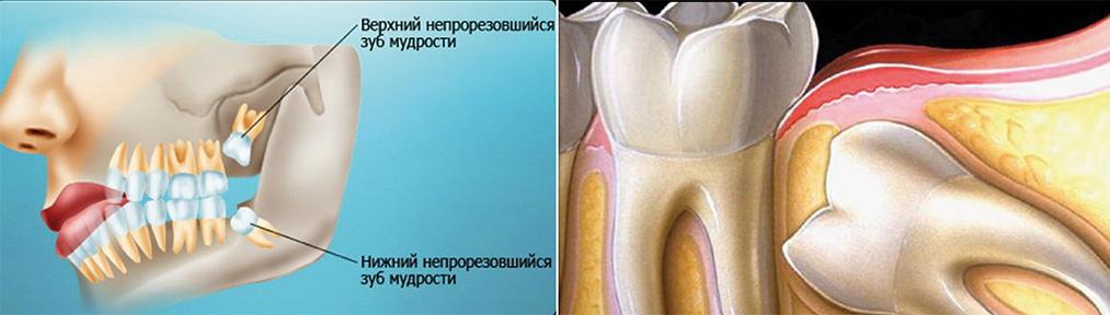 Положение зубов мудрости