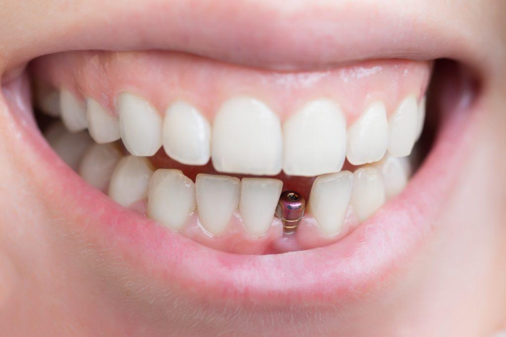 Штиф без зуба