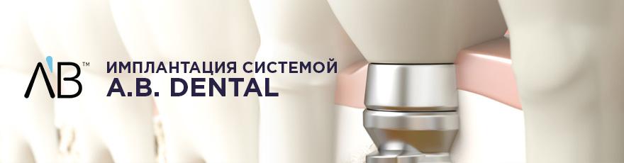 AB - имплантация системой A.B. Dental