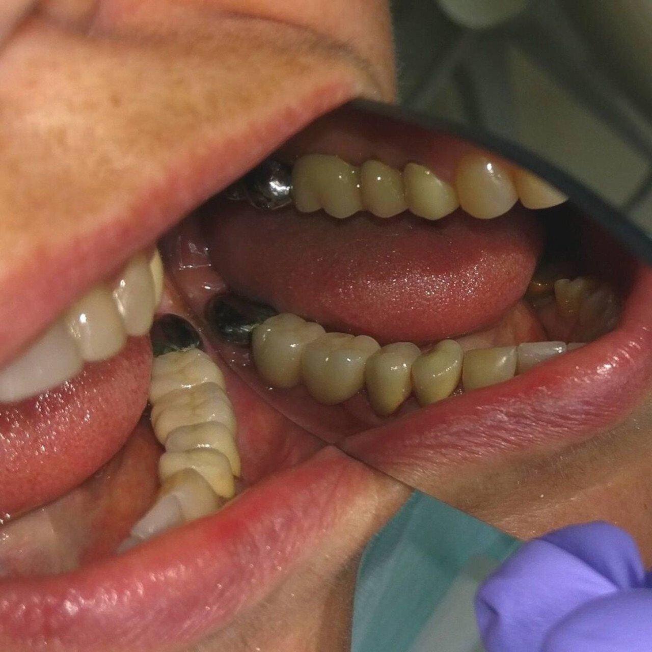 Имплантация зубов До