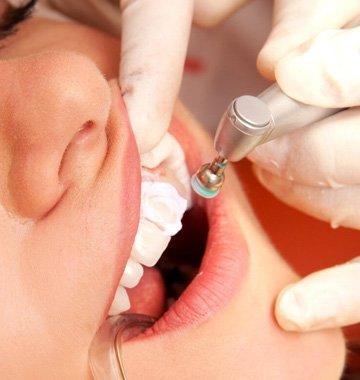 Чистка зубов, гигиеническая, профессиональная