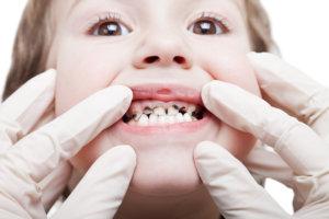 Гнилой зуб у ребенка