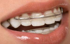 пластинки на зубах