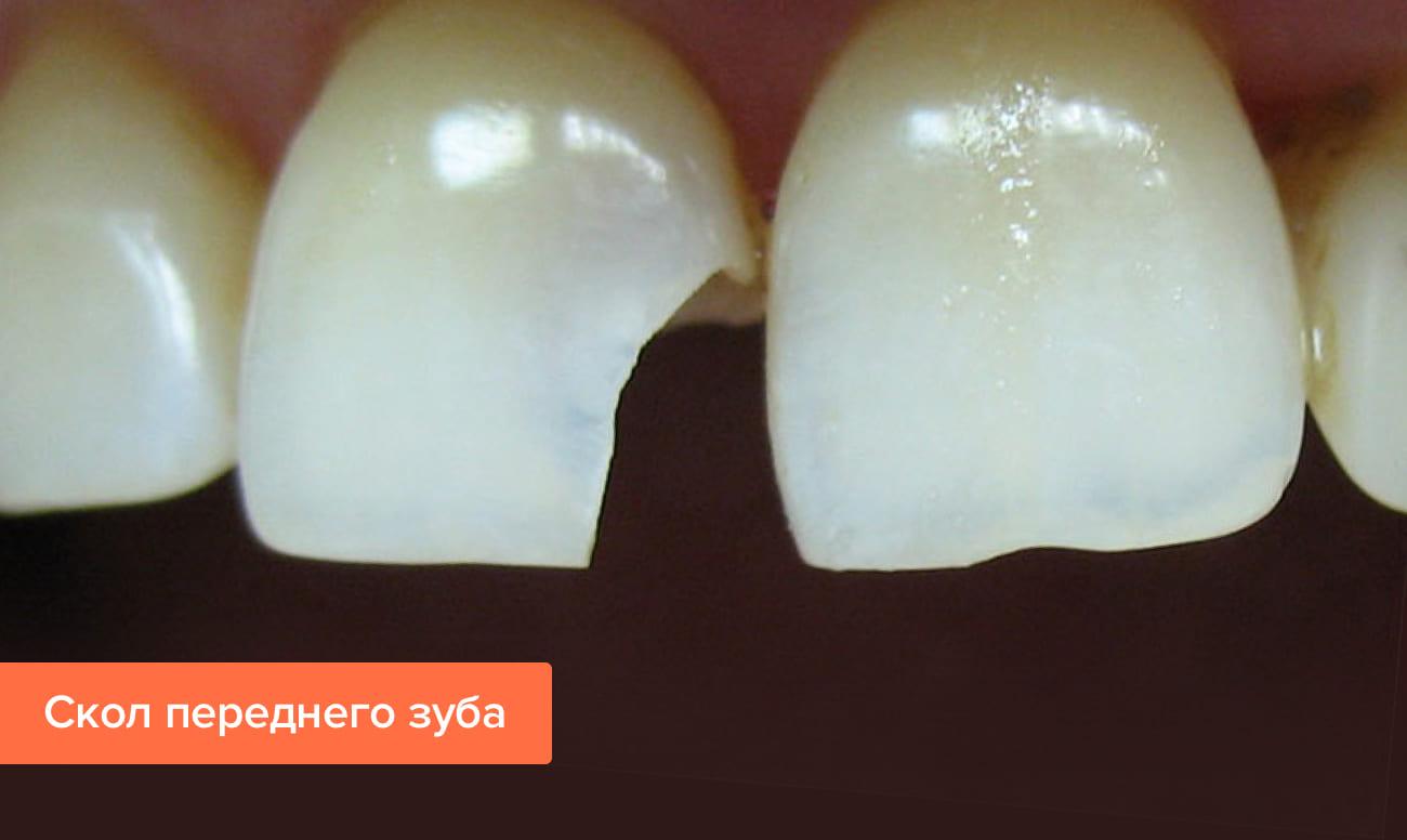 Лечение скола зуба